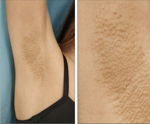 Axillary Fox-Fordyce Disease Induced By Laser Hair Removal